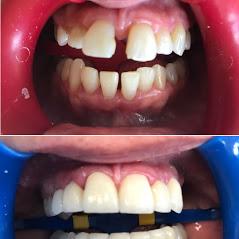 Dentists In Tijuana Mexico'