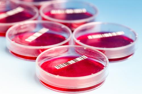 Blood Culture Test Market'