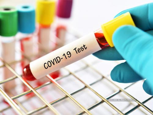 COVID-19 Testing Kits Market'