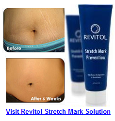Revitol Stretch Mark Cream'