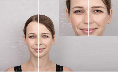 Comper Launches Skin Care Super Device on Kickstarter'