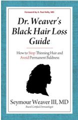 Black Hair Loss Guide'