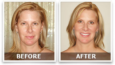 Anti Aging Before After'