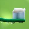 Teeth Whitening Service'