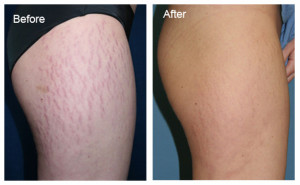 Stretch Mark Cream Before After'