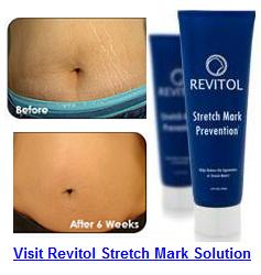 Stretch Mark Cream'