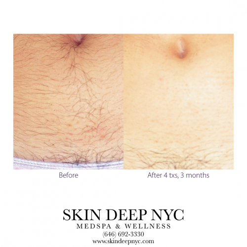 Top Rated MedSpa NYC - Skin Deep NYC Best Hair Removal'