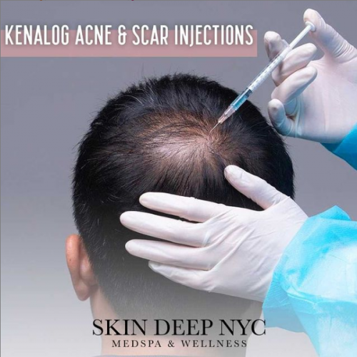 Top Rated MedSpa NYC - Skin Deep NYC Scar Injections'