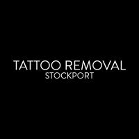 TATTOO REMOVAL STOCKPORT Logo