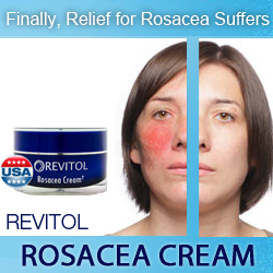 Rosacea Before After'