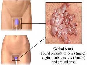 Genital Warts'