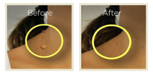 Skin Tag Removal'