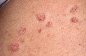 Revitol Skin Tag Removal'