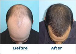 Hair Regrowth'