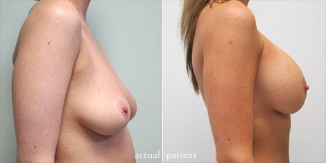 Breast Augmentation: Is It Worth It?'