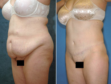 Tummy Tuck And Its Effect On People'