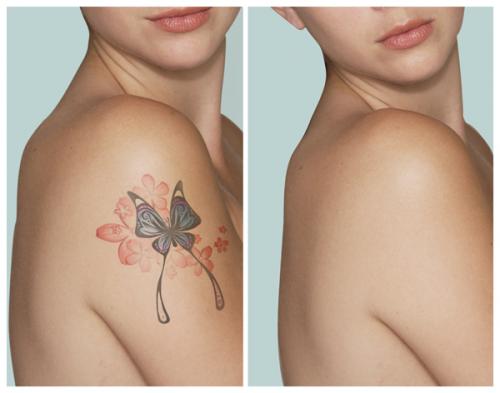 Tattoo Removal'