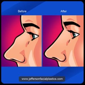Jefferson Facial Plastics'