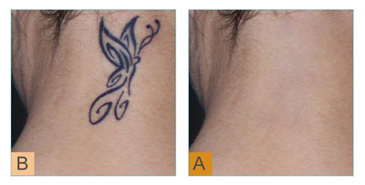Why Are People Going For A Tattoo Removal Option'