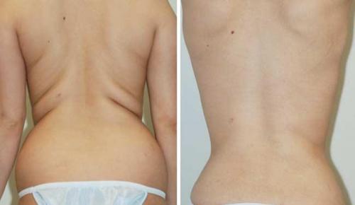 liposuction2'