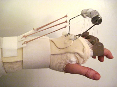 Lisa Copen's Outrigger Splint Following 4 Joint Replacements