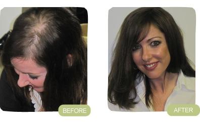 Provillus Hair Loss'