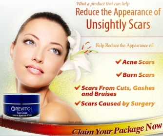 Revitol Scar Cream'