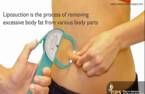 Liposuction Surgery in India'