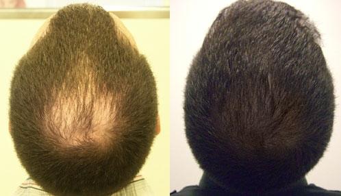 Hair Loss'
