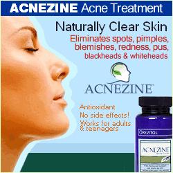 Acnezine'