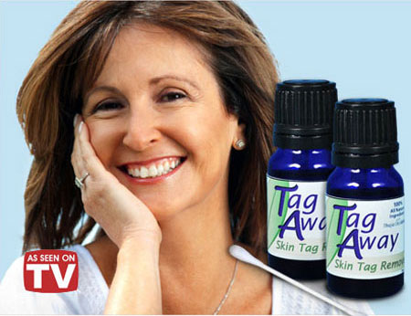 Official Tag Away Skin Tag Remover'