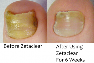 ZetaClear Review'
