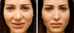 The Institute for Rhinoplasty and Nasal Reconstruction'