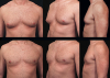 Male Breast Reduction'