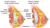 Breast Enlargement in India'