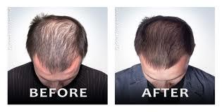 Harvokse Hair Regrowth'