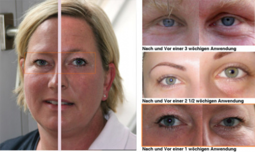 Facelift Gym Review'