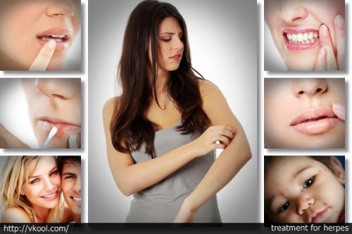 Get Rid of Herpes Program - Real Genital Herpes Treatment by'