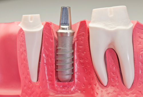 Dental Implants by Dr. Timm'