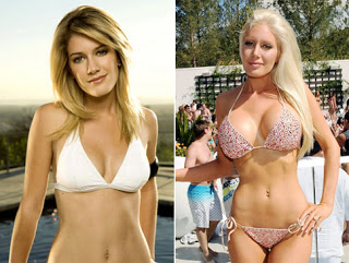 Breast Actives - Before & After'