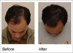 Profollica Hair Loss'