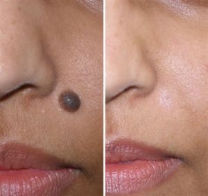 Revitol Skin Tag Before & After'