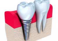 Dental Implants by Dr. Kelly LeBlanc