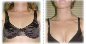 Breast Actives Breast Enhancment'