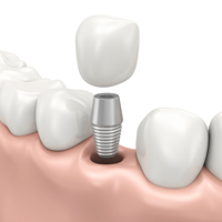 Implants Nottingham'
