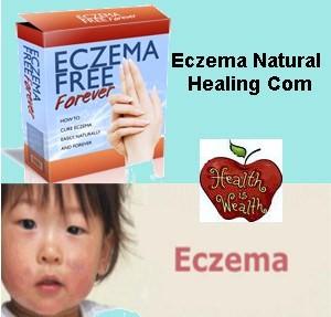 Eczema Natural Healing'