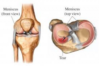 meniscal tear and knee osteoarthritis