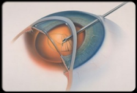 Johnson City Lasik surgeries