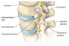 Lumbar disc herniation'