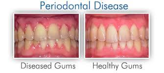 gum disease'
